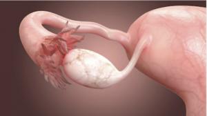 blocked fallopian tubes